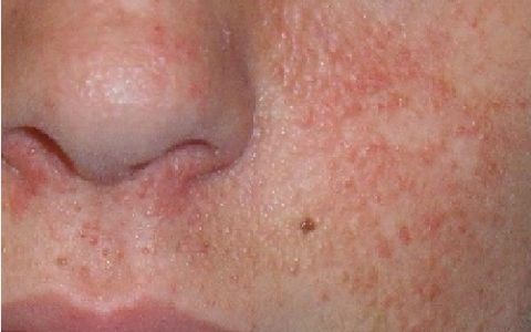 Sirolimus & Facial Angiofibromas